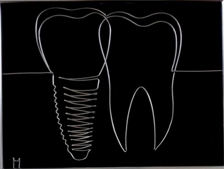 implant 20180801_120533-1